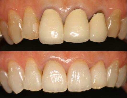 自分で白くする歯のマニキュアの実践法と歯医者で …